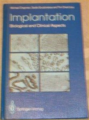 Implantation: Biological and Clinical Aspects - 0387195335